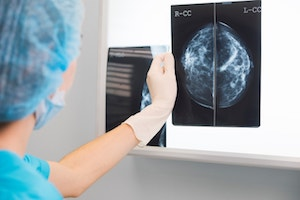 Diagnose Breast Cancer